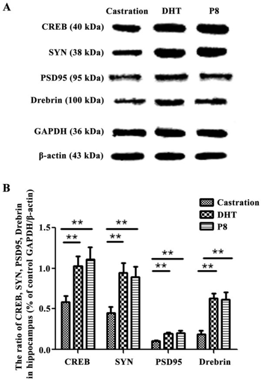 Western blotting showing the effects of castration and DHT intervention on the conversion from MCI to Alzheimer's dementia in SAMP8 mice. Western blot detected SYN, PSD95, Drebrin and CREB protein expression in the (A) castration, DHT and P8 groups. A statistical graph showing the difference of protein expression in the (B) four groups. The results are presented as the mean ± standard deviation (n=5). Statistical analysis was performed using one-way ANOVA with LSD post-hoc test. **P<0.01. DHT, dihydrotestosterone; SAMP8, senescence-accelerated mouse prone 8; SYN, synaptophysin; PSD95, postsynaptic density protein 95; CREB, cAMP-response element binding protein; Drebrin, developmentally regulated brain protein.