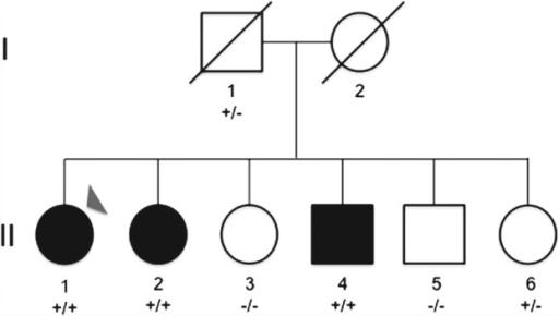 Pedigree Of The Studied Family Black Symbols Represent Open I