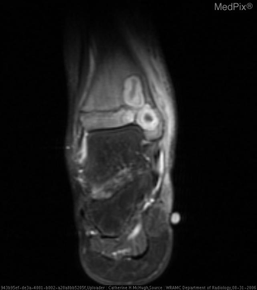 Axial T1-weighted MR image after contrast demonstrates well defined masses with non-enhancing centers, enhancing thick rim, and non-enhancing periphery. The lesion extends across the growth plate. High-signal-intensity bone marrow edema extends 5.5cm proximally into the distal tibial diaphysis from the site of the lesions.
