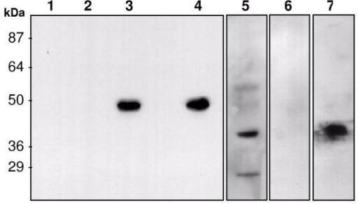 Expression of mycosin-1 in mycobacteria in culture and during infection of macrophages. Samples were resolved by SDS-PAGE and analyzed by Western blotting using anti-mycosin-1 antiserum. Lanes: 1, M. smegmatis; 2, M. smegmatis transformed with p19Kpro; 3, M. smegmatis transformed with p19K-P1; 4, M. tuberculosis clinical isolate GSH-3052 cell lysate; 5, M. tuberculosis clinical isolate GSH-3052 culture filtrate after growth in Kirchner's broth for 6 weeks; 6, lysate of uninfected P388D1 macrophages; 7, lysate of M. tuberculosis clinical isolate GSH-3052-infected P388D1 macrophages. Molecular weights (in kDa) are indicated on the left.