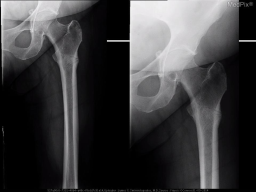 Healing incomplete fracture of the left proximal femoral diaphysis just below the lesser trochanter with associated cortical thickening and periosteal reaction.  Periosteal reaction indicates chronicity.