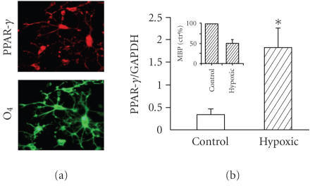 PPAR-γ expression in culture rat oligodendrocytes and in white matter (postnatalday 19) in rat model of global perinatal asphyxia. (a) Immunocytochemistry of rat OL progenitor cultures, prepared as previouslydescribed [40] for PPAR-γ (upperpanel) and the OL marker O4 (lower panel). (b) Western blot analysis of whitematter homogenates from rats at postnatal day 19 subjected to 20 minutes ofperinatal asphyxia (hypoxic) and from controls, prepared as described inPiscopo et al. [48]. Inset show the decreased levels of MBP in hypoxicrats at pnd 19.