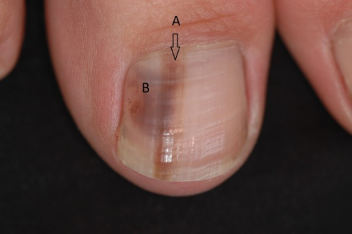A Single Nail Exhibiting Both Longitudinal Melanonychia | Open-i