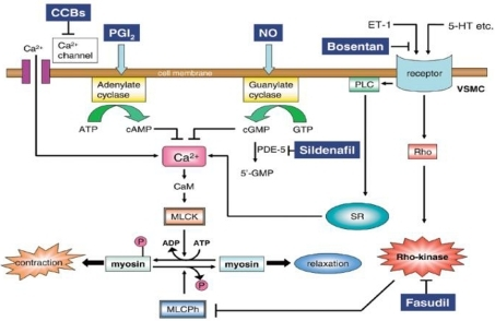 Mechanism of pulmonary dilatation in response to some specific drugs and Rho-kinase inhibitors. 5-HT, serotonin; CaM, calmodulin; CCBs, calcium channel blockers; ET-1, endothelin-1; MLCK, myosin light chain kinase; MLCPh, myosin light chain phosphatase; NO, nitric oxide; PDE-5, phosphodiesterase-5; VSMC, vascular smooth muscle cell; PGI2, prostacyclin; PLC, phospholipase C; SR, sarcoplasmic reticulum. Reproduced with permission from Fukumoto et al. (2007).