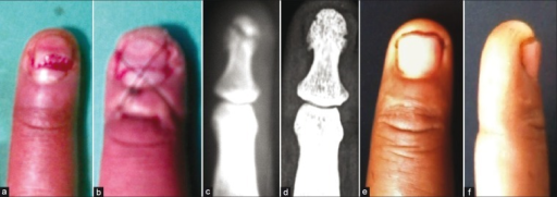 Clinical photographs (a,b,e,f) and X-rays anteroposterior view (c,d) shows (a) A 35-year-old patient with sharp injury through the nail. (b) Vertical figure-of-eight suture placed dorsally over the nail. (c) Fractured distal phalanx. (d) Healed distal phalanx at 2 years. (e and f) Clinically stable fingertip at 2 years