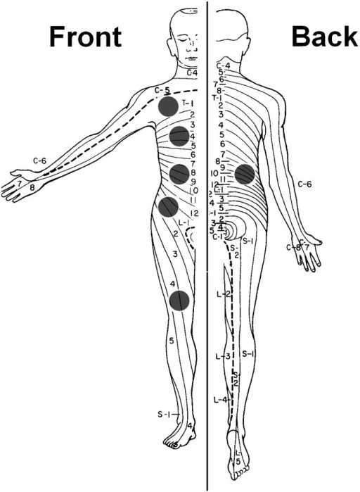 Dermatomes of measurement for quantitative sensory testing.Quantitative sensory testing was performed on the following sites on the dominant body side (black dots): clavicle (C5 dermatome), sternum (T4 dermatome), pancreatic site (dorsal and ventral T10 dermatome), hip region (L1 dermatome) and knee (L4 dermatome).