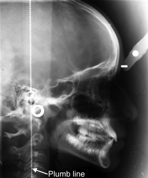 Lateral cephalogram