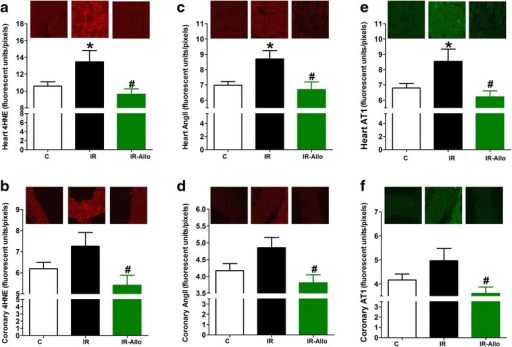 Effect of xanthine oxidase inhibition by daily oral administration of allopurinol (20 mg.kg−1, last 4 weeks) on 4-hydroxy-2-noneal Michael Adducts (4HNE), angiotensin II (AngII) and angiotensin receptor type 1 (AT1) immunofluorescence in heart (a, c and e respectively) and coronary artery (b, d and f respectively) sections from rats with high fructose high fat (for 12 weeks) induced insulin resistance (IR). Data are presented as mean ± standard error of 8 animals in each group. *P < 0.05, compared with the corresponding control group values; #P < 0.05 compared with the corresponding IR group values; by one way ANOVA and Newman Keuls' post hoc test. Micrographs at the top are representative fluorescence images of heart and coronary artery cross sections immunofluorescence stained by 4HNE, AngII or AT1 antibodies followed by Alexa fluor conjugated secondary antibodies.