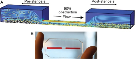 Microfluidic studies of arterial stenosis. (A) Schematic representation of a 3D microfluidic model of vascular narrowing that mimics a blood vessel with 90% lumen obstruction. (B) A photograph of the PDMS-based device that mimics vascular stenosis. Reproduced with permission from Korin et al.16.