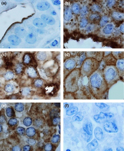 Intracellular localization pattern of MUC1. MUC1 expression was observed in three locations: the apical domain, cytoplasm and cell membrane. Accordingly, MUC1 localization patterns were classified as: (1) apical only (a); (2) apical + cytoplasm (b); (3) apical + cytoplasm + cell membrane (c); (4) cytoplasm + cell membrane (d); (5) cytoplasm only (e); and (6) negative (f).