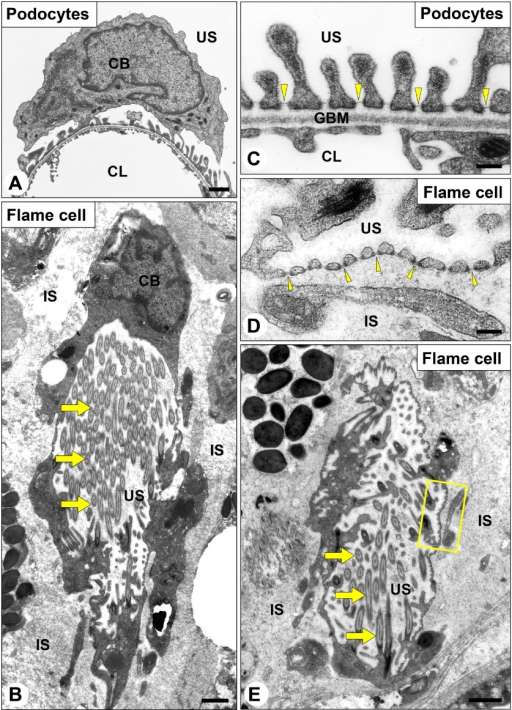 Ultrastructure of flame cells in the planarian D. japonica. Transmission electron micrographs of rat podocytes (A, C) and planarian flame cells (B, D, E), both of which form a primary-urine producing apparatus. The cell bodies of podocyte (A) and flame cell (B) are shown in low magnification view. Flame cell forms a flame bulb at the most proximal blunt end of protonephridial tubule, and possesses a bundle of motile cilia in the lumen (arrows in B, E). The slit diaphragm and slit diaphragm-like structure are recognized in podocytes and flame cells, respectively (arrowheads in C, D). Magnification of an inset in E is shown as D. CL, capillary lumen; GBM, glomerular basement membrane; IS, interstitial space; US, urinary space. Bars=1 μm (A, B, E); 200 nm (C, D).