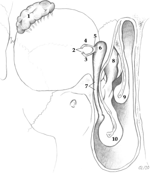 Anatomy of the nasolacrimal system: 1, lacrimal gland; 2, punctal openings; 3, inferior canaliculus; 4, superior canaliculus; 5, common canaliculus; 6, lacrimal sac; 7, nasolacrimal duct; 8, uncinate process; 9, middle turbinate; 10, inferior turbinate.