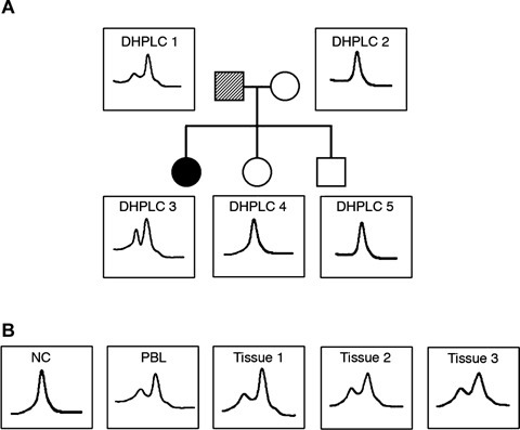 Denaturing high-performance liquid chromatography (DHPLC) analysis of exon 3 of the von Hippel-Lindau disease (VHL) gene in all the family members. (A) DHPLC analysis of the PCR products of exon 3 of the VHL gene in the pro-band (DHPLC 3), her father (DHPLC 1), her mother (DHPLC 2) and her brother and sister (DHPLC 4, 5). In the first-degree pedigree of this family, the pro-band is indicated by number 03, while her father, mother, sister and brother are indicated by the numbers 01, 02, 04 and 05, respectively. The dashed symbol for the pro-band's father indicates genetic mosaicism. DNA was extracted from peripheral blood lymphocytes (PBLs) in all five individuals. DHPLC analysis of the pro-band's DNA shows an extra peak that is barely visible (but reproducibly so) in her father's DNA. (B) DHPLC analysis of DNA extracted from a normal control (NC) sample, the father's PBLs, and the father's oral mucosa (tissue 1), hair roots (tissue 2) and fibroblasts (tissue 3).