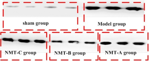 MuRf-1 expression in the triceps in lesion muscles was measured by Western blot. Levels of MuRf-1 in the NMT-B group were reduced compared with all groups except the sham group.
