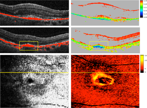 Accumulations of depolarizing retinal pigment epithelium structures detected by polarization-sensitive optical coherence tomography at baseline (Top) and 6 months (Middle, Bottom) following antiangiogenic therapy initiation of neovascular age-related macular degeneration. In its most advanced form, accumulating retinal pigment epithelium (RPE) at the lesion margins demonstrates a ring-shaped appearance surrounding a classic neovascular lesion. Intensity/RPE overlay (Top left, Middle left); degree of polarization uniformity image (Top right, Middle right); pseudo–scanning laser ophthalmoscopy image (Bottom left); thickness map of depolarizing material (Bottom right); note the increased presence of accumulations of depolarizing material at the RPE level at 6 months compared to baseline (rectangles).