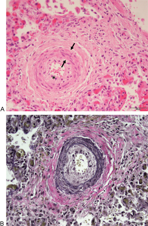 Hematoxylin and eosin stain (A) of a typical arteriole   Open-i