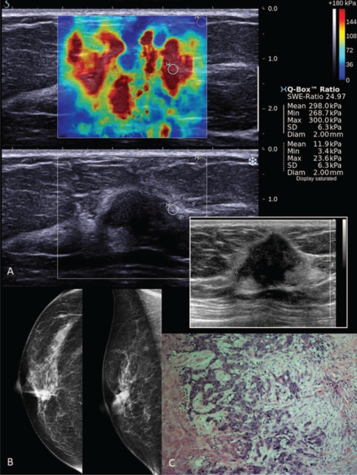 Shearwave elastography (SWE) of a Breast Imaging-Reporting and Data System (BI-RADS) 5 lesion in a 65-year-old woman with a palpable lump. (A) Shearwave imaging showed a heterogeneous color map and Emax of 300 kPa. Photo insert shows a gray scale B-mode ultrasound of an irregular lobulated hypoechoic lesion (taller than wider). (B) Right breast digital mammograms in MLO and CC views showing a high-density spiculated lesion with associated microcalcifications at the right upper inner quadrant. (C) Photomicrograph (H and E, ×40) of surgical excision specimen of an infiltrating ductal carcinoma.