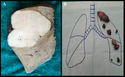 (A) Cut section of right hepatectomy showing greyish white tumour (9.8 × 5.5) cm reaching the capsular surface, closest margin of resection 0.5 cm, (B) pulmonary metastatic lesions following left muscle sparing thoracotomy.
