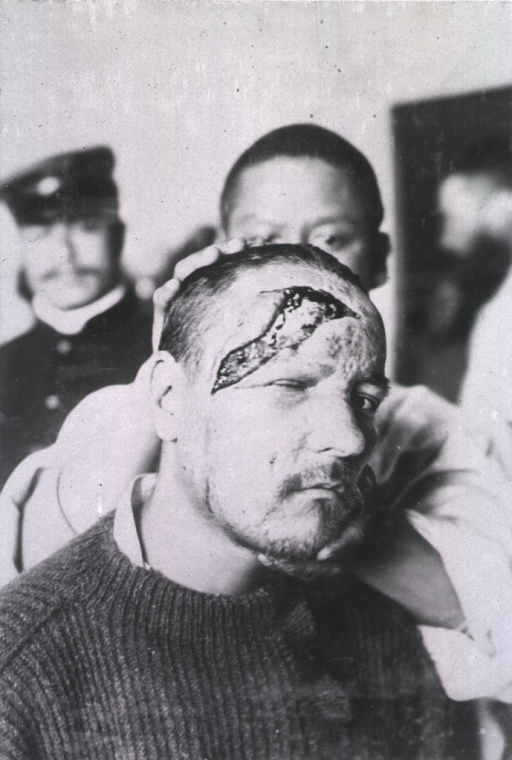 <p>An open wound extends from the patient's forehead to his right ear.</p>
