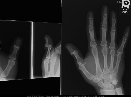 A-P radiograph of the hand, lateral and oblique radiographs of the thumb show a complete dorsal dislocation of the distal phalanx of the right thumb in relationship to the proximal phalanx. These prereduction radiographs show no fracture.