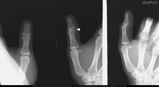 Post-reduction radiographs of the right thumb in A-P, lateral, and oblique projections show a small avulsed fracture fragment at the interphalangeal joint (arrow) as seen only on the oblique radiograph.
