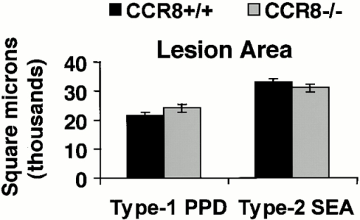 Effect of CCR8 deletion on secondary type 1 (PPD) and type 2 (SEA) granuloma formation. Groups of CCR8+/+ (129 × B6) and CCR8−/− (129 × B6) mice were sensitized subcutaneously with M. bovis PPD in Freund's adjuvant or intraperitoneally with 3,000 S. mansoni eggs. After 14 d of sensitization, lung granulomas were elicited with 6,000 PPD or SEA Ag-coated beads. Granulomas were examined on day 4 after bead challenge. (Top left) Type 1 and type 2 granuloma cross-sectional areas. (Top right) Cellular composition of type 1 and type 2 lung granulomas. Five to six mice per group. (Bottom) Histologic appearances of type 2 (SEA) bead granulomas in CCR8+/+ and CCR8−/− (original magnifications: ×400; inset, ×800). All observations were repeated in three separate experiments. Bars are means ± SEM. *P < 0.05 comparing CCR8+/+ to CCR8−/−. Findings were similar in separate studies using either 129sv or 129sv × C57BL/6 F2 background mice. Lym, lymphocytes; Mac, macrophages; Eos, eosinophils; Neu, neutrophils.
