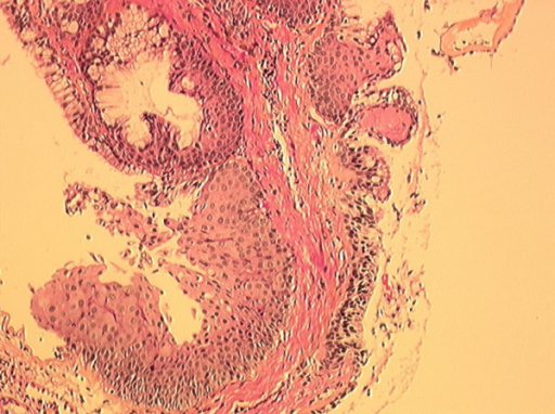 Mixed solitary bronchial papilloma. At this magnification, fibrovascular cores are lined by squamous and glandular epithelium. Hematoxylin-eosin stain; magnification × 100.