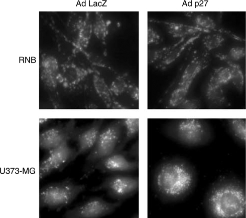 Effect of AdMH4p27 on induction of autophagy. At 72 h after the adenoviral infection with AdBHGΔl,3 or AdMH4p27, U373-MG or RNB cells were treated with 1 μg ml−1 of acridine orange, and incubated at 37°C for 15 min. Viable cells were observed under the fluorescence microscope. Results shown are representative of three independent experiments.