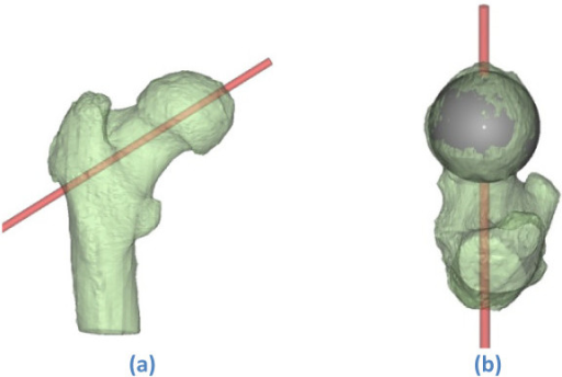 Planned guide wire direction on a (transparently visualised) 3 D model of the proximal femur. (a)-(b) Seen from posterior and superior respectively. [Mimics© screenshot].
