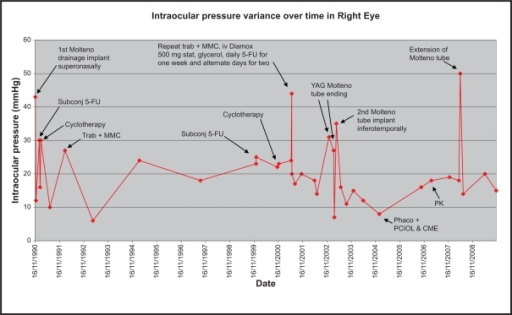 Graph showing IOP (mm Hg) variance over time in the right eye with points of intervention when there was a spike in IOP.Abbreviations: 5-FU, 5-fluorouracil; IOP, intraocular pressure; MMC, mitomycin-C; phaco, phacoemulsification; subconj, subconjunctival; trab, trabeculectomy; YAG, yttrium aluminium garnet. CME, cystoid macular edema; PCIOL, posterior chamber intraocular lens; PK, penetreting keratoplasty.