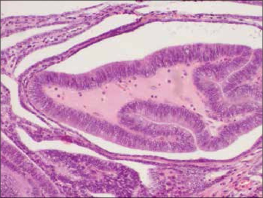 Ductal adenocarcinoma with papillary patterns in the prostatic ducts (H&E, medium–power magnification, x10).