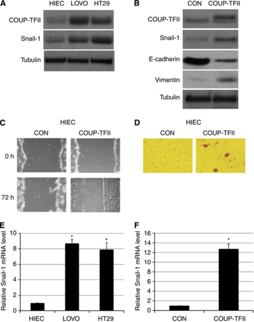 Overexpression of COUP-TFII in intestinal epithelial cells results in tumour characteristics. (A) Expression of COUP-TFII and Snail-1 in HIEC, LOVO and HT29 cells by western blot. (B) HIEC cells were transfected with a COUP-TFII-overexpressing plasmid (COUP-TFII), and cytoplasmic COUP-TFII and Snail-1 were examined by western blot. (C) Wound-healing assay of control and COUP-TFII-overexpressing HIEC cells showing wound width for percent closure of the original wound in triplicate plates. Similar results were obtained in three experiments. (D) Migrated control and COUP-TFII-overexpressing cells that penetrated Matrigel-coated filters. (E) Snail-1 mRNA in HIEC, LOVO and HT29 cells was quantified by real-time PCR (*P< 0.01 compared to HIEC). (F) Snail-1 mRNA in control and COUP-TFII-overexpressing cells quantified by real-time PCR (*P<0.01 compared to CON).