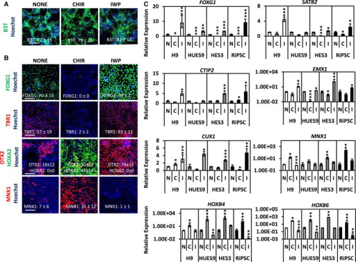 Analysis of Neurons Derived from CHIR- and IWP2-Treated and Untreated NPC Cultures(A) IF of mature neuronal markers B3T in neuronal cultures differentiated from 500 nM CHIR- and 1,000 nM IWP2-treated and untreated NPC cultures derived from H9 hPSCs (scale bar, 100 μm).(B) IF of cortical-, forebrain-, midbrain-, hindbrain-, and spinal-cord-related neuronal genes in neurons differentiated from 500 nM CHIR- and 1,000 nM IWP2-treated and untreated NPC cultures derived from H9 hPSCs (scale bar, 100 μm).(C) Expression of cortical-, forebrain-, midbrain-, hindbrain-, and spinal-cord-related neuronal genes in neurons differentiated from 500 nM CHIR- and 1,000 nM IWP2-treated and untreated NPC cultures derived from H9, HUES9, HES3, and RiPSC hPSCs (mean ± SEM, n = 4 independent experiments). Populations were compared with neurons differentiated from untreated (N) NPCs using Student's t test. ∗p < 0.05, ∗∗p < 0.01, ∗∗∗p < 0.001.