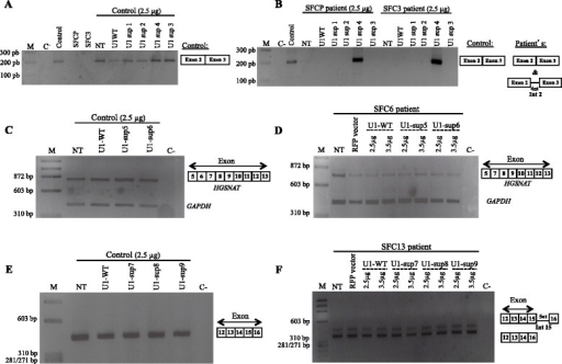 Analysis by RT-PCR of the endogenous splicing pattern of control and patients SFCP, SFC3, SFC6 and SFC13 derived fibroblasts after transfection with different U1 isoforms. (A), (C) and (E) The constitutive splicing of exons 2, 6 and 15 of the HGSNAT gene was not altered in control fibroblasts after overexpression of U1-WT or any of the modified U1 constructs. (B) In the patients SFCP and SFC3, bearing the homozygous mutation c.234 + 1G > A, only the fully adapted U1 (2.5 μg of U1-sup4) resulted in partial correction of exon 2 skipping. The same result was obtained with 1 or 3.5 μg of the U1-sup4 construct (data not shown). (D) and (F) For patients SFC6 and SFC13, bearing genotypes c.633 + 1G >A/c.1334T > C and c.1542 + 4dupA/c.1150C > T, respectively, the transfection of 2.5 or 3.5 μg of U1-WT or any generated U1 suppressor vector did not produced any change in the endogenous aberrant splicing pattern. Sequencing results for all RT-PCR products are illustrated by schematic drawings. M: molecular weight marker; NT: non-treated cells; C-: negative control; RFP: red fluorescent protein.