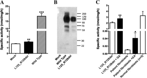 Enzymatic activity of mutant HGSNAT-L125_R128del protein can be partially restored by the pharmacological chaperone,glucosamine. (A) N-acetyltransferase activity of COS-7 cells transfected with the pcDNA-HGSNAT-L125_R128del plasmid is significantly increased compared to that of cells transfected with the empty pcDNA plasmid (mock). The data show means (±S.D.) of individual measurements. Three transfections (each in duplicate) were performed on separate occasions.** and ***: statistically different from mock-transfected cells (p < 0.01 and p < 0.001, respectively) according to unpaired t-test. (B) COS-7 cells transfected with the pcDNA-HGSNAT-L125_R128del plasmid produce 160 kDa dimmers and 78 kDa monomers of HGSNAT precursor protein but show drastically reduced amounts of 44 kDa and 25 kDa mature HGSNAT chains produced by intra-lysosomal enzymatic cleavage. Panel shows representative data of 3 independent transfections. (C) N-acetyltransferase activity of COS-7 cells transfected with the pcDNA-HGSNAT-L125_R128del plasmid and of cultured primary fibroblasts of the patient homozygous for the c.372-2A > G mutation is significantly increased after treating the cells in culture with 10 mM glucosamine for 72 h (+GA). The data show means (±S.D.) of individual measurements. Three independent experiments measurements were performed each of them with 2 cell plates. * and **: statistically different from untreated cells (p < 0.05 and p < 0.01, respectively) by unpaired t-test.