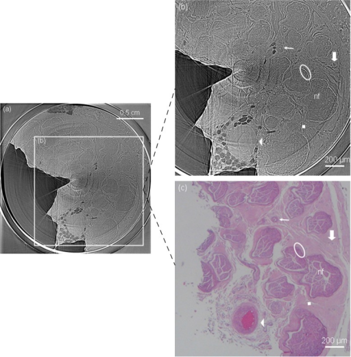 Axial slice of phase contrast x-ray tomography (a).Dose for the full tomography scan (1000 projections) was 0.23 mGy. Detailed axial section is shown in (b) and, for comparison, its corresponding optical microscope image in (c). Clear delineation of each nerve fascicle and surrounding structures are possible without sectioning, fixation or staining procedures with PC tomography. In the images, nerve fascicles (nf), an artery (arrow head), arterioles (thin arrow), venules (thick arrow), epineurium (square) and perineurium (ellipse) can be easily distinguished.