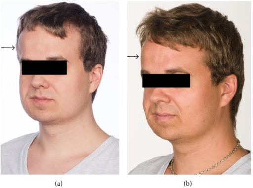 (a) Before fat transplantation contour defect on the right frontal region in the location of the black arrow. (b) Three months after one fat transplantation with a decreased contour defect on the right frontal region of the head in the location of the black arrow.