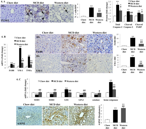 Effects of MCD diet and Western diet on liver cell death, inflammation and oxidative stress.(A). TUNEL assay and Western blot for caspase-2 and cleaved PARP; (B). qRT-PCR of macrophage markers (F4/80 and YM-1) and TNF-α (left). Immunohistochemistry for F4/80 and YM-1: Representative photos and morphometry (right). (C). qRT-PCR analysis of anti-oxidant enzymes (top) and immunohistochemistry plus morphometry for 4-hydroxynonenal (4-HNE) in representative mice (lower). Results normalized to chow-diet fed mice and graphed as mean±SEM. *<0.05 and **<0.005, control versus experimental diet; ##<0.005, MCD versus Western diet.