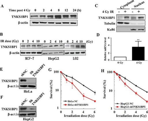 Upregulation of TNKS1BP1 by ionizing radiation (IR) and its effect on the radiosensitivity of cells(A) Immunoblotting hybridization showing the increased expression of TNKS1BP1 protein in HeLa cells at given times after exposed to 4 Gy of γ-rays. (B) Immunoblotting hybridization showing the increased expression of TNKS1BP1 protein in MCF7, HepG2 and L02 cells at 4 h after different doses of γ-rays. (C) Increased TNKS1BP1 protein levels in both cytoplasm and nuclei in HeLa cells at 4 h after 4 Gy of γ-rays. (D) Quantitative real-time RT-PCR analysis showing the increased mRNA expression of TNKS1BP1 in HeLa cells at 2 h after 4 Gy of γ-rays. (E) Depletion of TNKS1BP1 expression in HeLa cells mediated by specific shRNA. (F) Depletion of TNKS1BP1 expression in HepG2 cells mediated by specific shRNA. (G) TNKS1BP1 depleted HeLa-shTNKS1BP1 cells became much more sensitive to IR as compared to the control HeLa-NC cells. (H) TNKS1BP1 depleted HepG2-shTNKS1BP1 cells became much more sensitive to IR as compared to the control HepG2-NC cells.