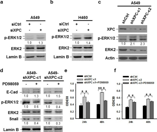 XPC regulates cell proliferation of NSCLC cells through the ERK/Snail/E-Cadherin pathway(A-C) Expression of phospho-ERK1/2 was detected in A549 and H460 cells either transiently transfected with siXPC or stably transfected with shXPC. The intensity of p-ERK1/2 bands was quantified using ImageJ and normalized to ERK2 and then to siCtrl/shCtrl-transfected cells. (D-F) Two clones of A549 cells with stable XPC knockdown were treated with the ERK inhibitor PD98059 for 24 h. Expression of p-ERK1/2, Snail, and E-Cadherin was detected using immunoblotting. The intensity of each band was quantified using ImageJ and normalized to either ERK2, or Lamin B, and then to non-treated cells (D). Cell growth was determined using methylene blue staining. n = 5, bar: SD, *, P < 0.05, **, P < 0.01 (E,F).