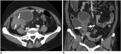Contrast-enhanced computed tomography (CT) scan of 66-year-old woman with torsion of follicular cyst in right ovary.Transverse CT scan (A) and coronal reformation (B) show multilocular cystic mass with homogeneously elongated soft tissue lesion representing tubal thickening (arrows).