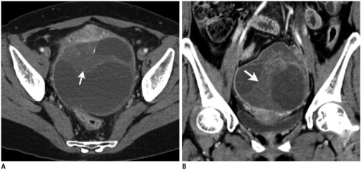 Contrast-enhanced computed tomography (CT) scan of 52-year-old woman with torsion of follicular cyst in right ovary.Transverse CT scan (A) and coronal reformation (B) show eccentric septal thickening (arrow) of cystic mass.