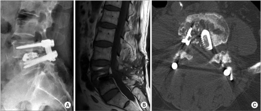 A typical case of organ/space infection. (A) The simple lateral radiograph of spondylitis shows osteolysis of both facing end plates, migration of cages, and loosening of pedicle screws. (B) The T1-weighted sagittal magnetic resonance imaging view shows low signal change of both facing end plates and vertebral bodies. However, there was no infection signal at approach route. (C) The axial view of computed tomography shows Swiss cheese-like end plate resorption.