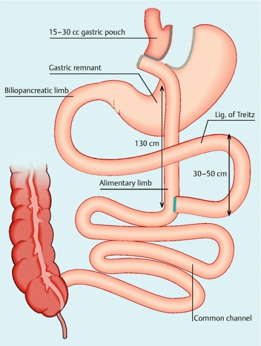Roux En Y Gastric Bypass Configuration The Proximal Open I