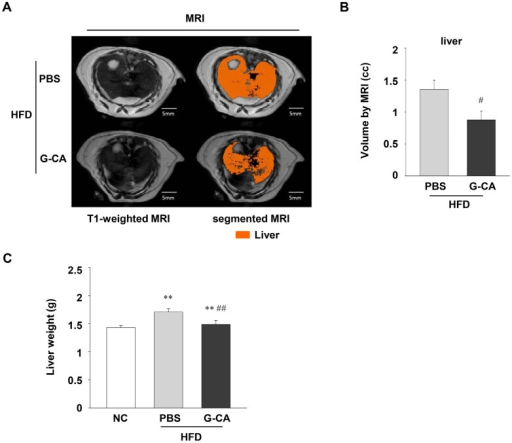 Effect of G-CA on liver volume and liver tissue weight. Six weeks after beginning a high fat diet, C57BL6 mice were orally administered G-CA (300 mg/kg body weight) or PBS daily. (A) After 10 weeks of G-CA treatment, figure shows typical MRIs of liver of PBS-HFD (n = 5) and G-CA-HFD groups (n = 5). The left panels show T1-weighted MRI including the liver. The sections in orange-brown represent liver in the segmented MRIs. (B) The graph depicts the difference in the total liver volumes in PBS-HFD and G-CA-HFD groups. (C) After 10 weeks of G-CA treatment, liver tissue was collected and weighed (NC: n = 5, PBS-HFD: n = 9, G-CA-HFD: n = 7). NC: untreated, normal chow diet; PBS-HFD: PBS-treated, high fat diet (HFD); and G-CA-HFD: G-CA-treated, HFD. Values are mean ± SE. ** p < 0.01 vs. NC group; #p < 0.05, ##p < 0.01 vs. PBS-HFD group.