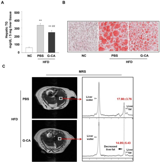 Effect of G-CA on hepatic lipid accumulation. Six weeks after beginning a high fat diet, C57BL6 mice were orally administered G-CA (300 mg/kg body weight) or PBS daily for 10 weeks. (A) Hepatic triglyceride (TG) content was measured in liver tissue (n = 5–6); (B) Oil Red O staining was performed on frozen liver sections; (C) The right panels show typical liver 1H MR spectra from the selected region denoted as the white square in MRI in the left in PBS-HFD (n = 5) and G-CA-HFD groups (n = 5). NC: untreated, normal chow diet; PBS-HFD: PBS-treated, high fat diet (HFD); and G-CA-HFD: G-CA-treated, HFD. Values are mean ± SE. ** p <0.01 vs. NC group; ##p <0.01 vs. PBS-HFD group.