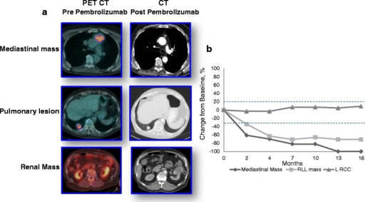 a PET CT images of the mediastinal mass, pulmonary lesion and renal mass. Left column: Pre- pembrolizumab; right column: 8 weeks after administration of one dose of pembrolizumab. There is near complete involution of the anterior mediastinal mass and a decrease in size of the pulmonary lesion. The size of the renal mass is unchanged. b Size (cm) on axial imaging (CT or PET/CT) of renal, mediastinal and dominant right pulmonary nodule over time. The last scan showed two new subcentimter pulmonary metastases and increased size of a soft tissue component of the left renal mass