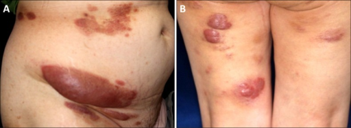 (A) Multiple erythematous tumors and plaques on the patient's trunk. The largest tumor was observed at the right lower abdomen. (B) Multiple erythematous tumors on the lower extremities.