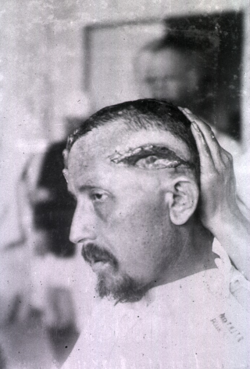 <p>An open wound extends from the patient's forehead around the left side of his head.</p>