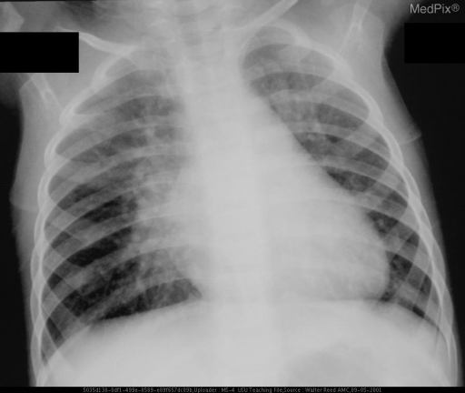 Although there are no prior studies for comparison, there is significantly increased pulmonary vascular markings when compared to the normal 8-month-old.  There is also an enlarged cardiomediastinal silhouette.  Osseous structures demonstrate a twelfth hypoplastic rib on the left.